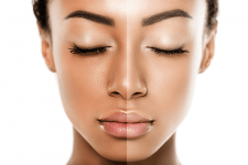 Some Important things to keep in mind while using Skin Bleaching