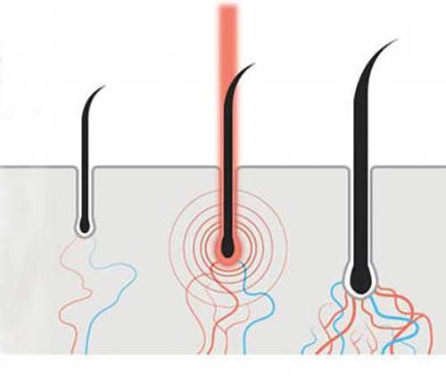 Does Steam Help Hair Growth